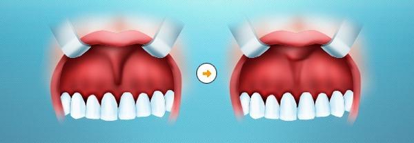 уздечка верхней губы у ребенка норма фото