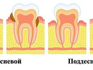 Зубной камень.