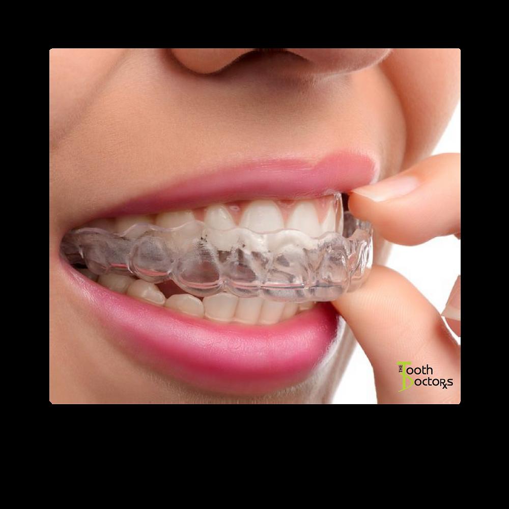 invisalign, clear aligner therapy, braces