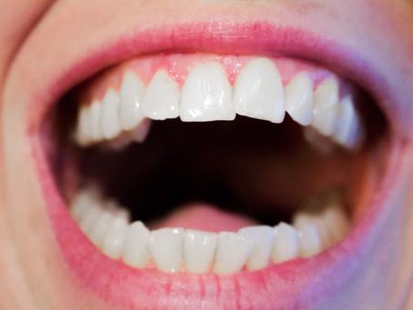 Let's Talk About Gum Disease