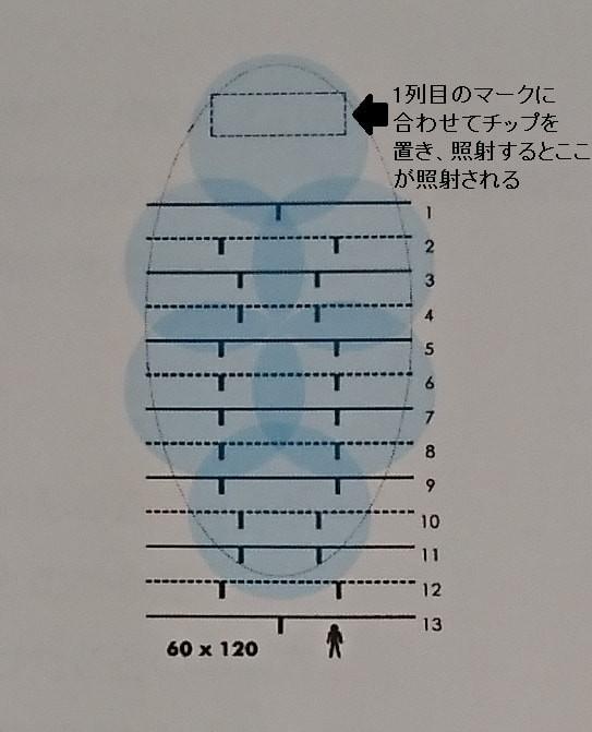 わきが多汗症治療のミラドライ miradry  テンプレート CLINIC N クリニックN 東京銀座新橋品川 すそわきが(すそが)治療も行っております。