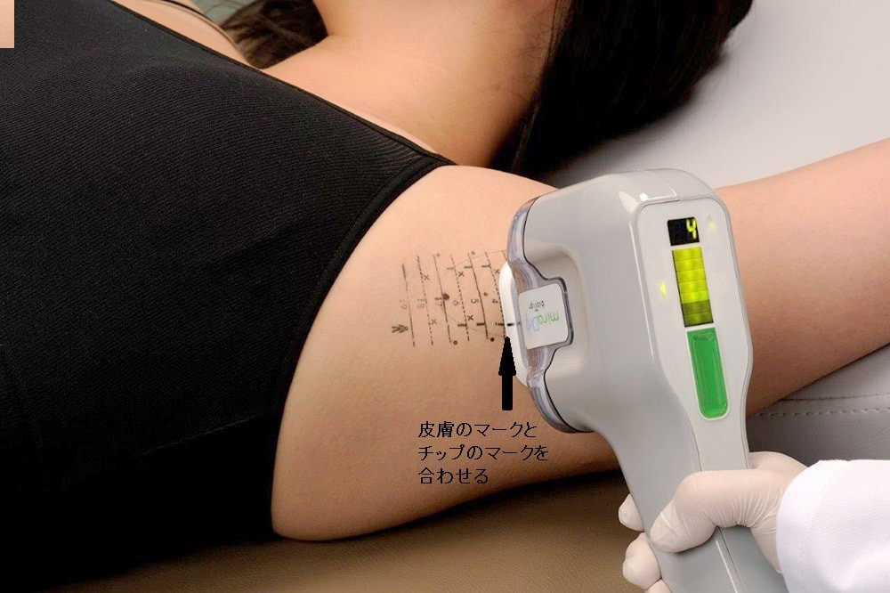 ミラドライ 照射の仕方 マーキング CLINIC N クリニックN 東京銀座 ミラドライモニター 腋臭症治療
