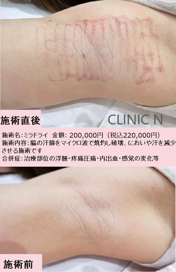 ミラドライ 東京銀座 クリニックN ミラドライモニター ミラドライ認定医 わきが 多汗症