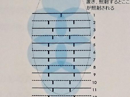 ミラドライ 1照射で照射される範囲 CLINIC N東京銀座 ワキガ多汗症治療