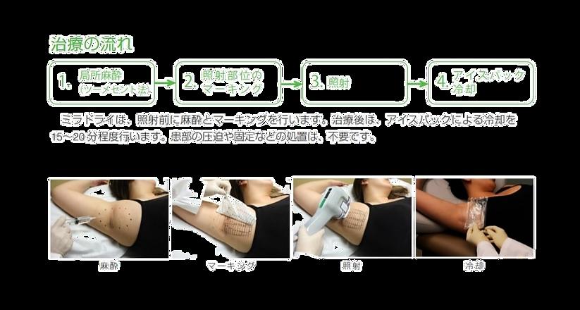 ミラドライ治療の流れ 麻酔 マーキング 照射 クーリング