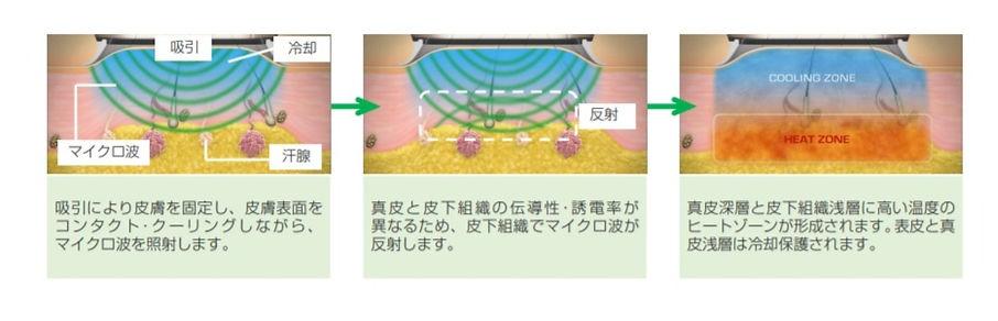ミラドライ マイクロ波照射 エクリン汗腺 アポクリン汗腺 破壊の様子 CLINIC N (クリニックN)東京銀座