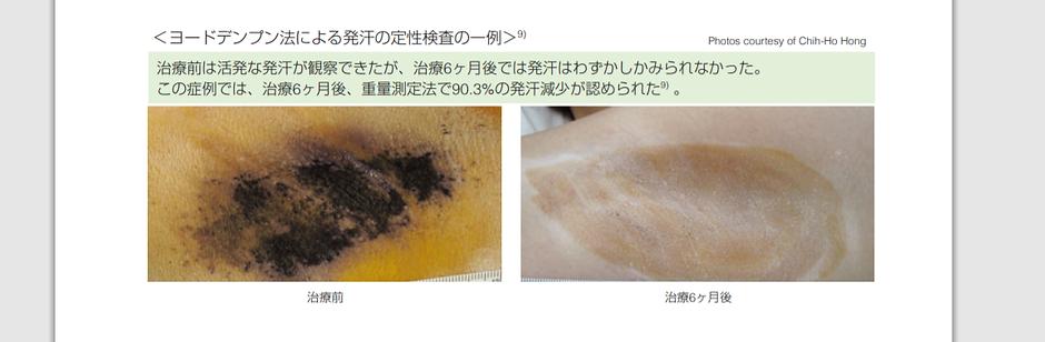 発汗部位テスト ミラドライ miraDry CLINIC N Tokyo Ginza ワキガ多汗症治療