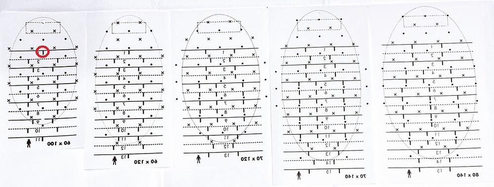ミラドライ 広範囲 カスタマイズ可能 ダブル照射可能 クリニックN