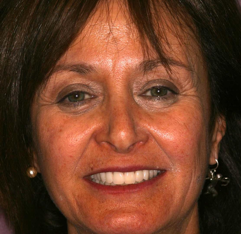 Carol Kohner11.jpg