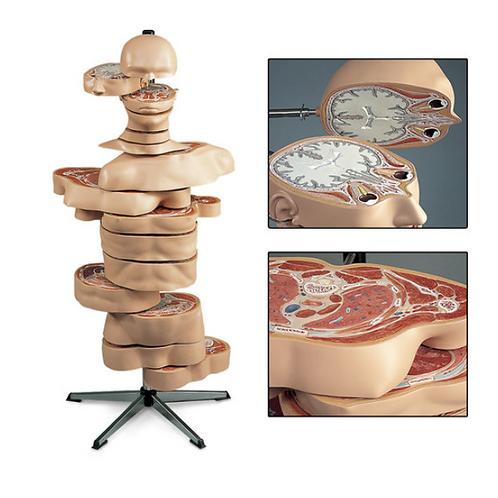MRI Torso (15 Transverse Sections)