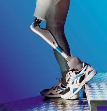 Help Amputees Retain Access to Appropriate Prosthetic Care and Devices!