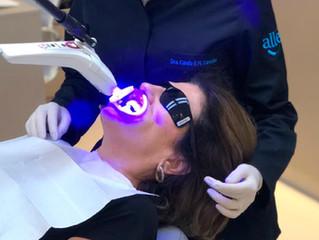 Clareamento com LED violeta: tecnologia a favor do seu sorriso