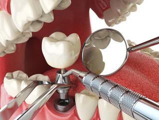 O que são implantes e como funcionam?