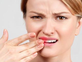 Você está com algum dente quebrado?  Saiba por que você deve procurar um dentista imediatamente