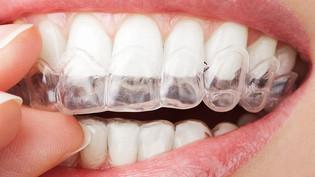 Clareamento dental com auto aplicação supervisionada (caseiro), funciona?