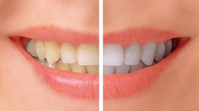 Clareamento dental a laser ou caseiro? Qual é o melhor para você?
