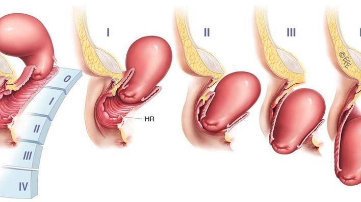 Пролапс гениталий (опущение матки и стенок влагалища): причины возникновения, симптомы и эффективное