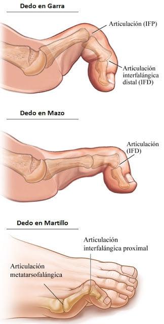 Cirugia Laser de Juanetes Sevilla, Cirugía del Pie Sevilla