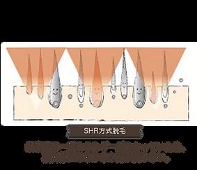 大阪で人気のおすすめメンズ脱毛サロン。大阪梅田から駅近の徒歩5分圏内にある安いメンズ脱毛サロン。心斎橋、難波からもスグでおすすめの光脱毛、フラッシュ脱毛で痛くないのに効果がある「メンズ堂々」の濃い毛の効果に特化した脱毛機。全身、脚、足、すね、太もも、ヒゲ、胸毛、むね、腹、vio、手、腕にも効果のある脱毛機を使い発毛サイクルにあわせた施術で最大の効果を実現。一度の脱毛時間が短いため安い脱毛を実現した大阪のメンズ脱毛の機械。SHR脱毛の進化版THR脱毛を採用の大阪メンズ脱毛サロン。