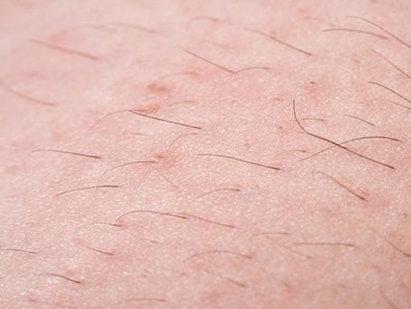 脱毛で起こる硬毛化とは