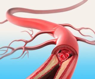 Colesterol: Por quê tratá-lo?