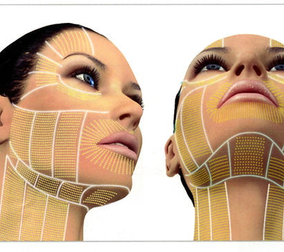 Ulthera-Facial-Thermal-Coagulation-Point