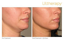 ultherapy-0132p-h_before-120daysafter_lo