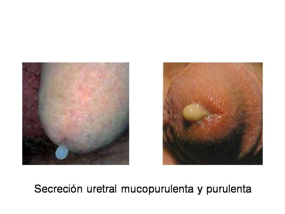 gonorrea uretritis