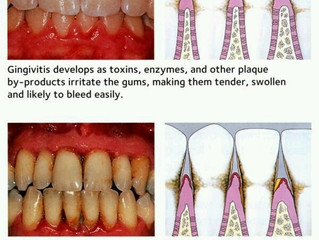 What's The Deal With Gum Diseases? Dr.R Gives Us the Answer!