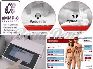 PerioSafe ImplantSafe Enzyme TEST.jpg