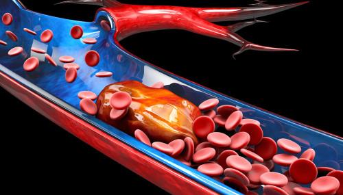 Trombose Sintomas e Tratamento