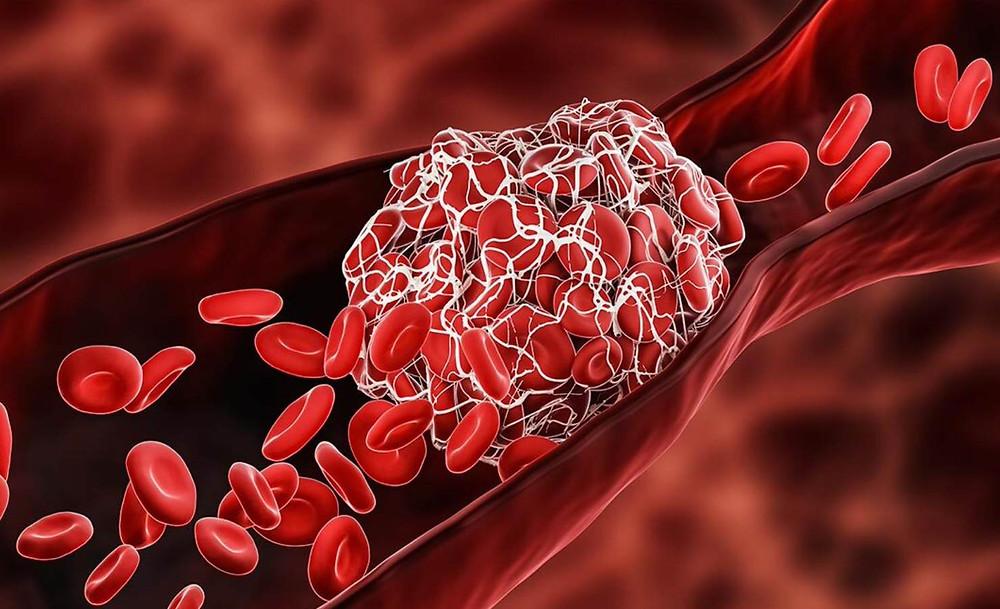 Demonstra um coágulo ocluindo um vaso sanguíneo.