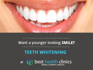 Enlighten Teeth Whitening: How & Why It Works