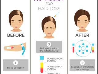 PRP – Hair Loss Treatment Blog