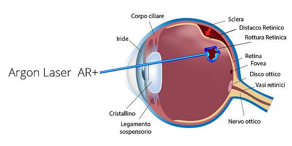 Argon_Laser_Terapia_Retinica_Poliambulan