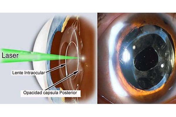 que-es-la-capsulotomia-posterior-laser-y