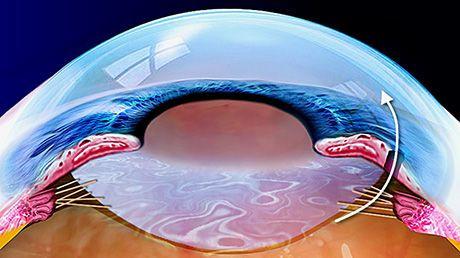 iridotomia-yag-laser.jpg