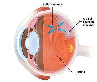 distacco_retina.png