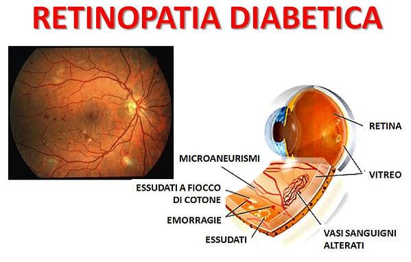 retinopatia-diabetica-esempio.jpg