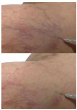 Escleroterapia con espuma (polidocanol). Se observa secuencialmente el borramiento de las venas tratadas