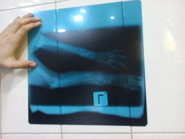 Koi X Ray