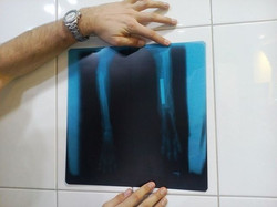Kodi X ray