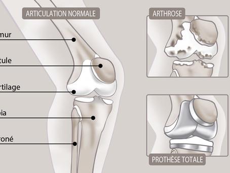 IRDES : dessins médicaux