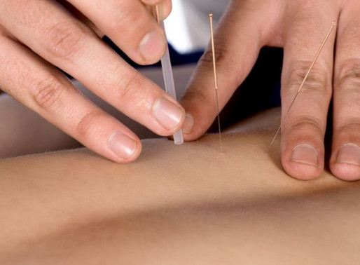 Acupuncture in the ED?