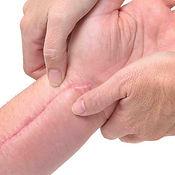 Scar-Tissue-After-Surgery.jpg