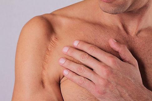 Post48-Scars-Treatment.jpg