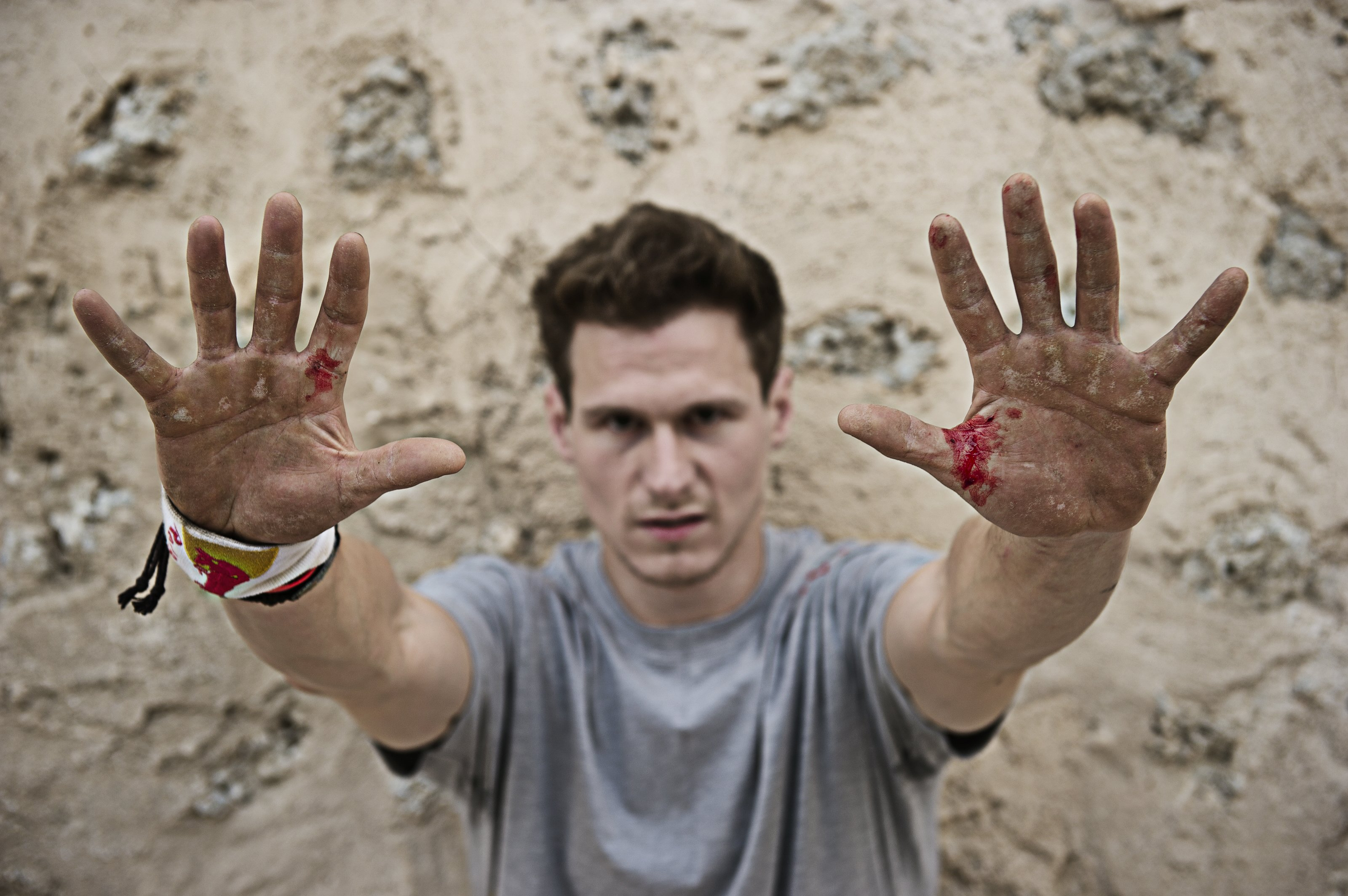 ryan doyle hands blood
