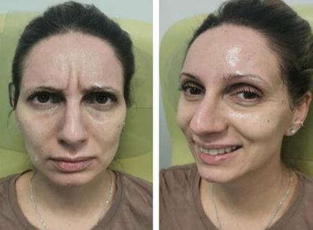 Combinatorial Biologics for Skin Rejuvenation Activating the Tissue Regeneration