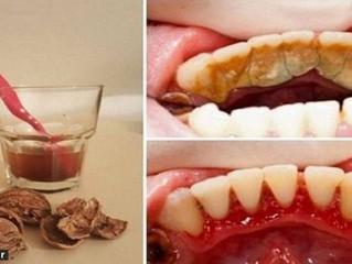 """چگونه """"جرم دندان"""" را بدون هزینه از بین ببریم؟"""