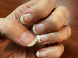 Health Essentials: White Spots on Your Nails?